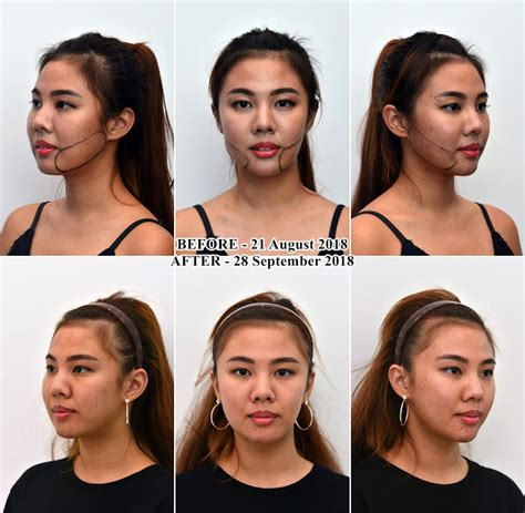 The progress of my cheek fat removal with CoolMini at