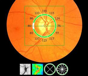 Optic Nerve Imaging   Glaucoma Research Foundation